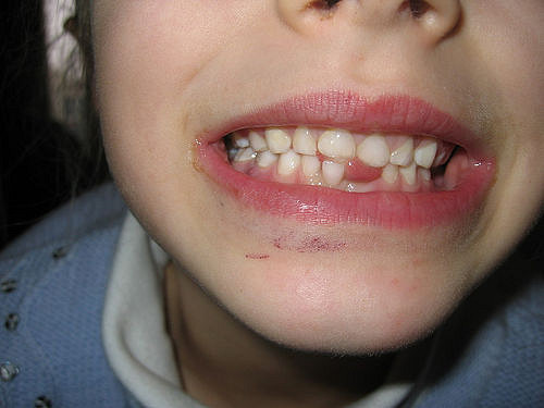 What Should I Do If My Child Knocks Out A Tooth?