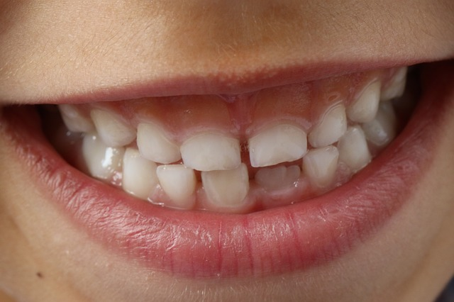 The Future Is Near: Tooth Decay Vaccine Is On the Way
