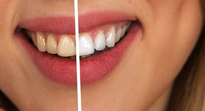 Charcoal Whitening: Is It Worth It?