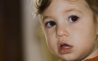 Risk Factors for Gingivitis: Part 2