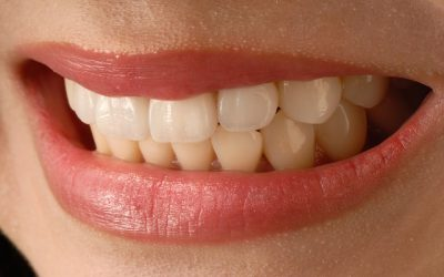 7 Ways to Care for Sensitive Teeth