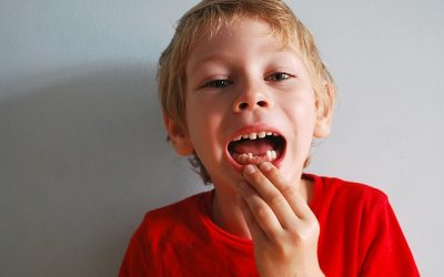 Should You Pull Out that Loose Tooth?