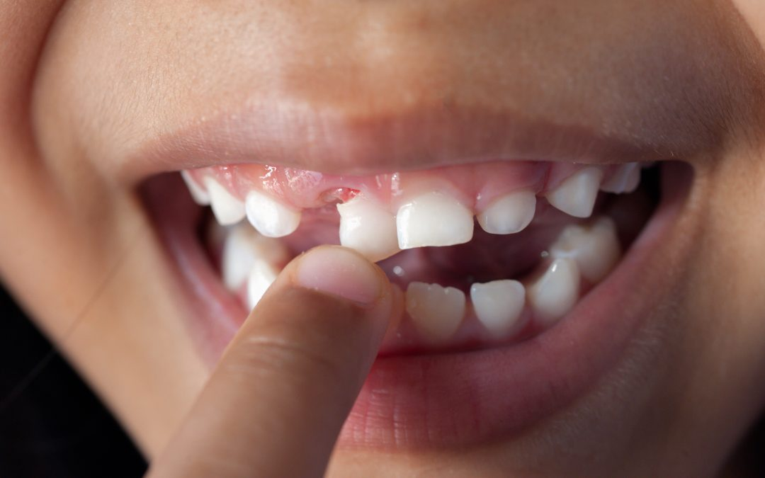 6 Tips for Dealing With a Loose Tooth