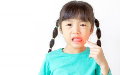 Tips for Dealing With Dental Emergencies